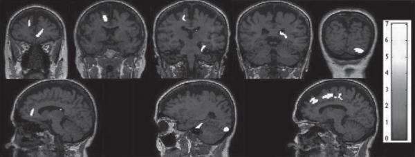 研究发现可以早期检测阿尔茨海默病