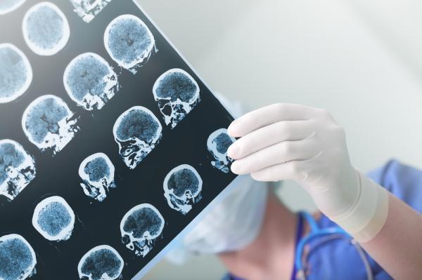 科学家们找到治疗阿尔茨海默病的新方法
