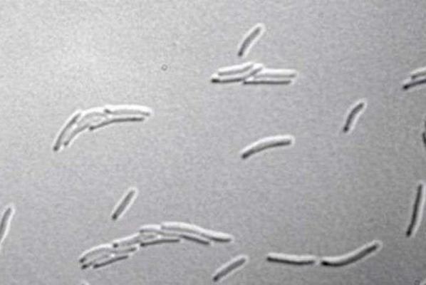 科学家发现了几个从未发现过细菌结构-分子机械碎片