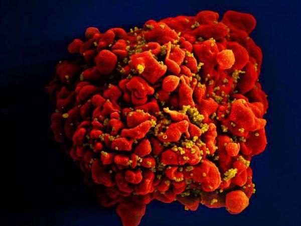 新抗体能抵御 99% 艾滋病病毒变种 人类临床实验明年启动