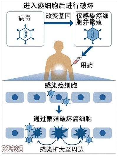 日本研发病毒抗癌疗法
