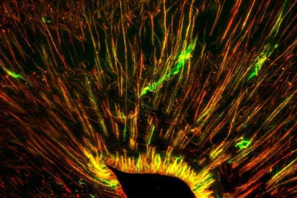 豹纹壁虎可以长出新的脑细胞