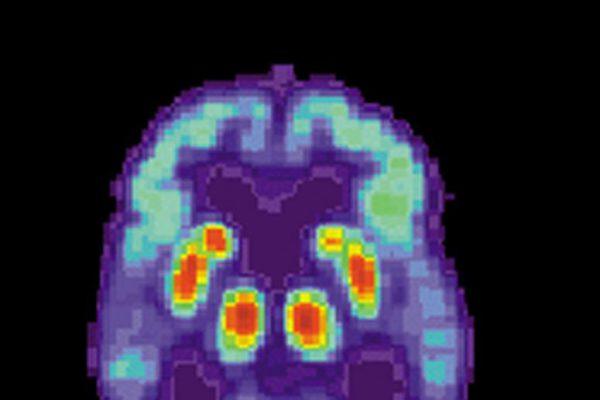 药物试验显示出减缓阿尔茨海默病的精神衰退的希望