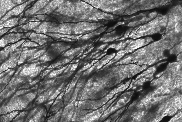 研究发现,人体神经元是电隔离的 区室化允许神经元的一