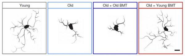 移植年轻的骨髓使衰老的老鼠大脑恢复活力
